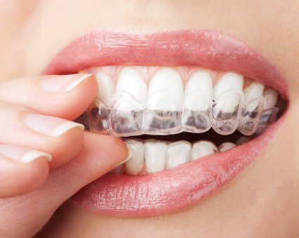 Wearing Invisalign on teeth